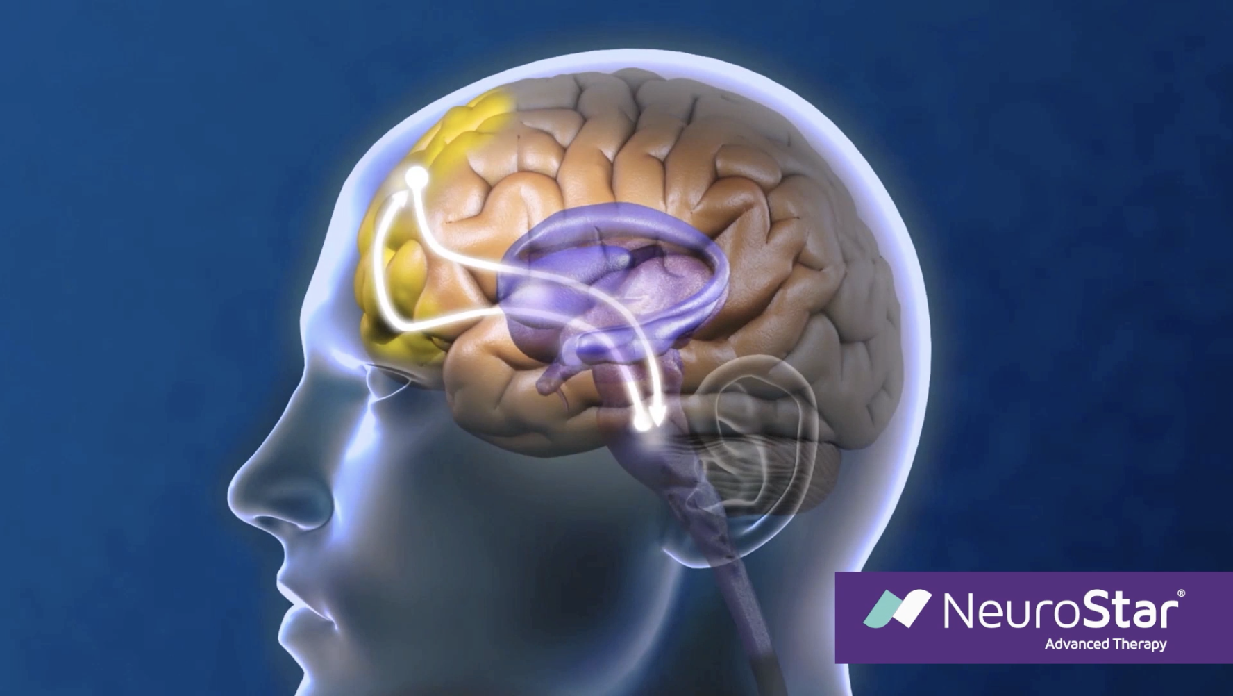 Stimulating-the-deep-brain-with-TMS